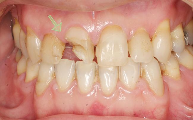 当院の症例 審美歯科