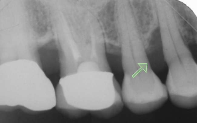 当院の症例 歯周病