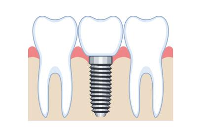 インプラント治療の進め方 仮歯装着・かぶせ物(最終補綴物)装着